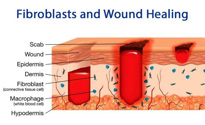 Fibroblasts and Wound Healing